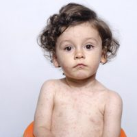 photo of child with measles